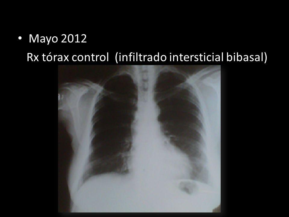 Mayo 2012 Rx tórax control (infiltrado intersticial bibasal)