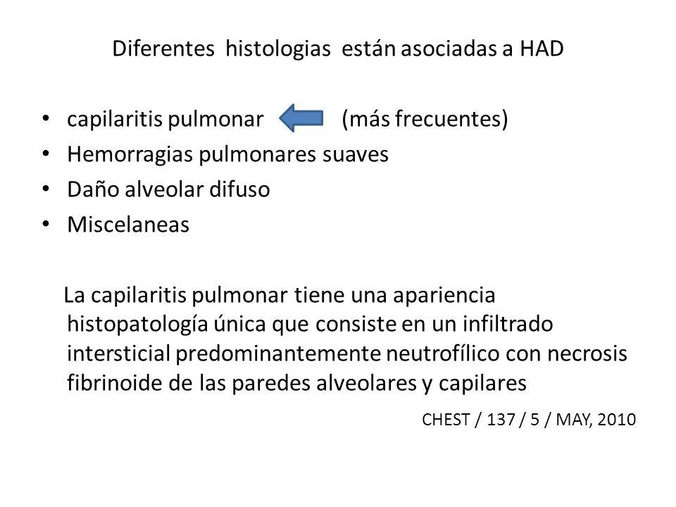 Diferentes histologias están asociadas a HAD