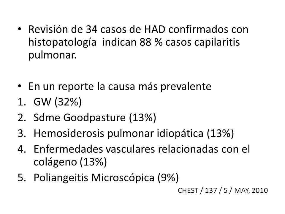 En un reporte la causa más prevalente GW (32%) Sdme Goodpasture (13%)