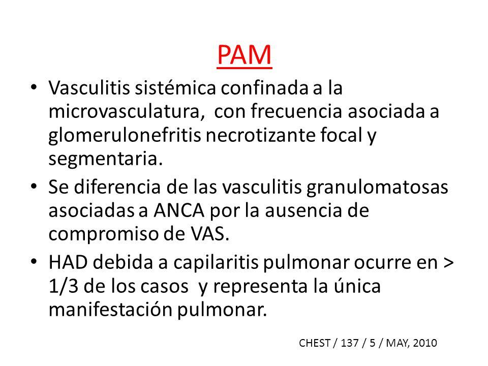 PAM Vasculitis sistémica confinada a la microvasculatura, con frecuencia asociada a glomerulonefritis necrotizante focal y segmentaria.