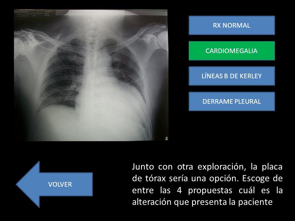 RX NORMAL CARDIOMEGALIA. CARDIOMEGALIA. LÍNEAS B DE KERLEY. DERRAME PLEURAL.