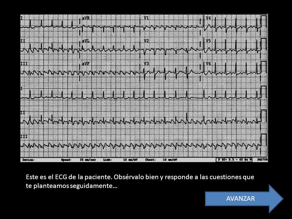 Este es el ECG de la paciente