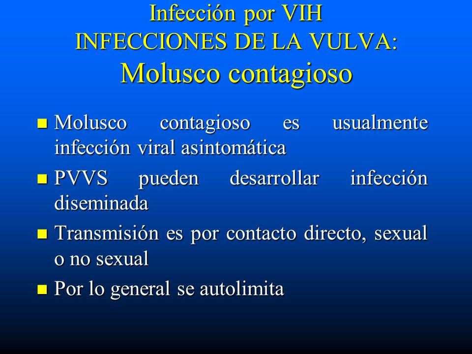 Infección por VIH INFECCIONES DE LA VULVA: Molusco contagioso