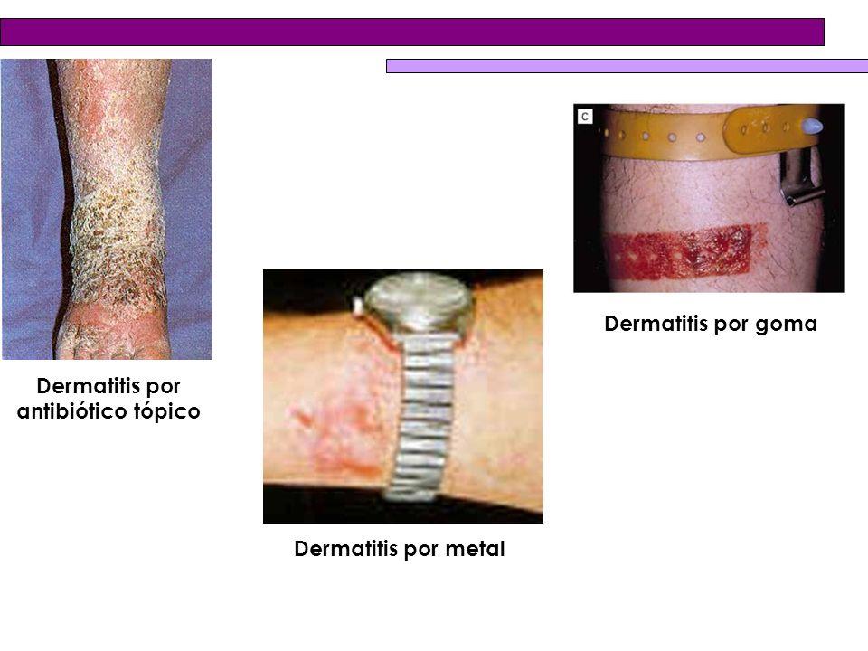 Dermatitis por antibiótico tópico