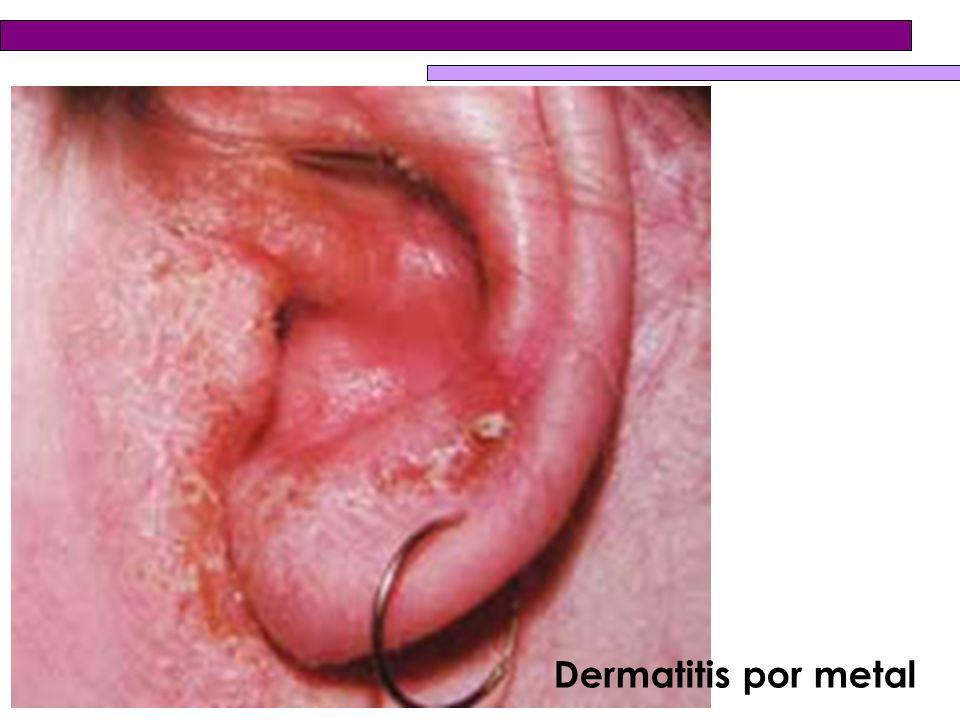 Dermatitis por metal
