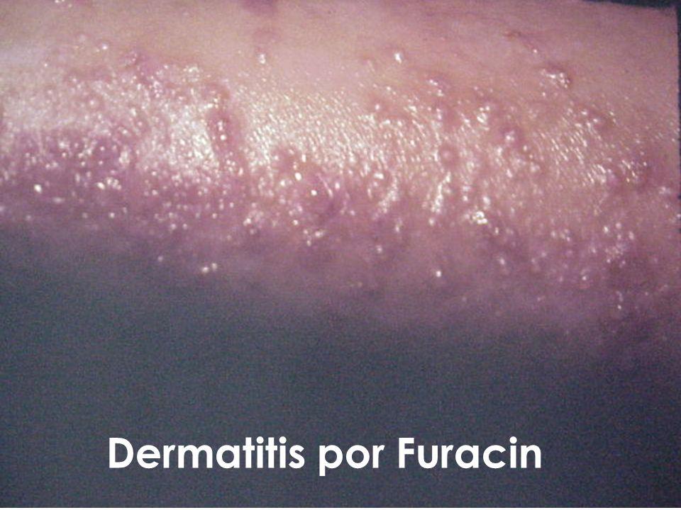 Dermatitis por Furacin