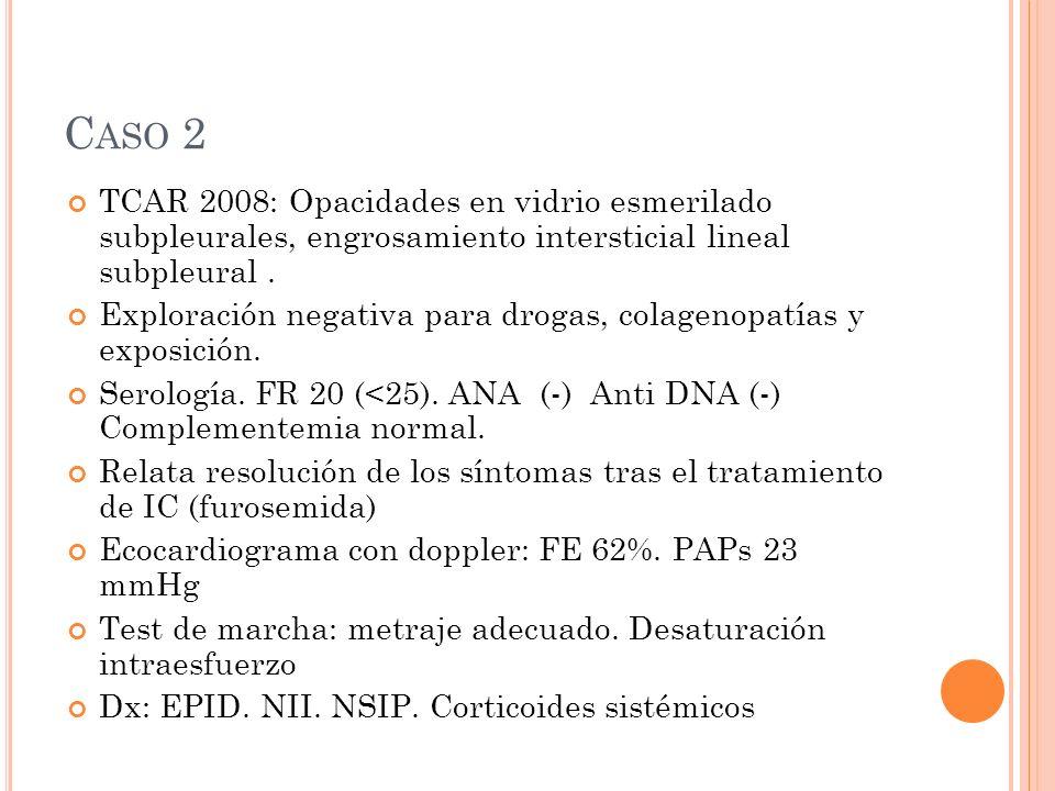 Caso 2 TCAR 2008: Opacidades en vidrio esmerilado subpleurales, engrosamiento intersticial lineal subpleural .
