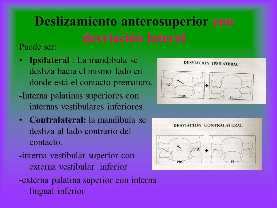 Deslizamiento anterosuperior con desviación lateral