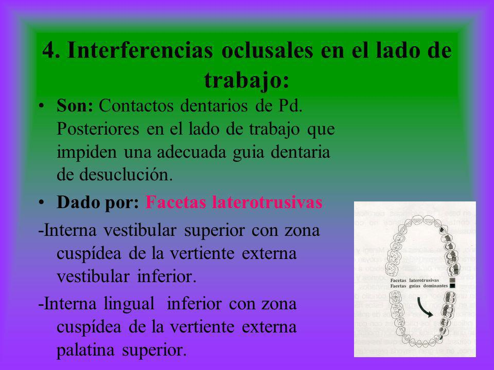 4. Interferencias oclusales en el lado de trabajo:
