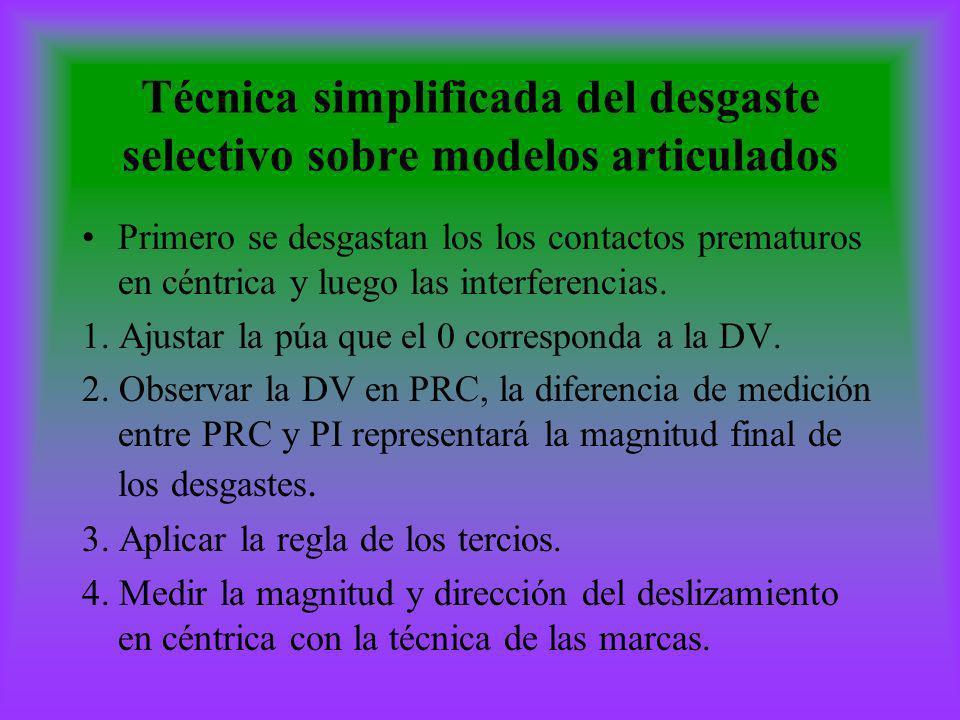 Técnica simplificada del desgaste selectivo sobre modelos articulados