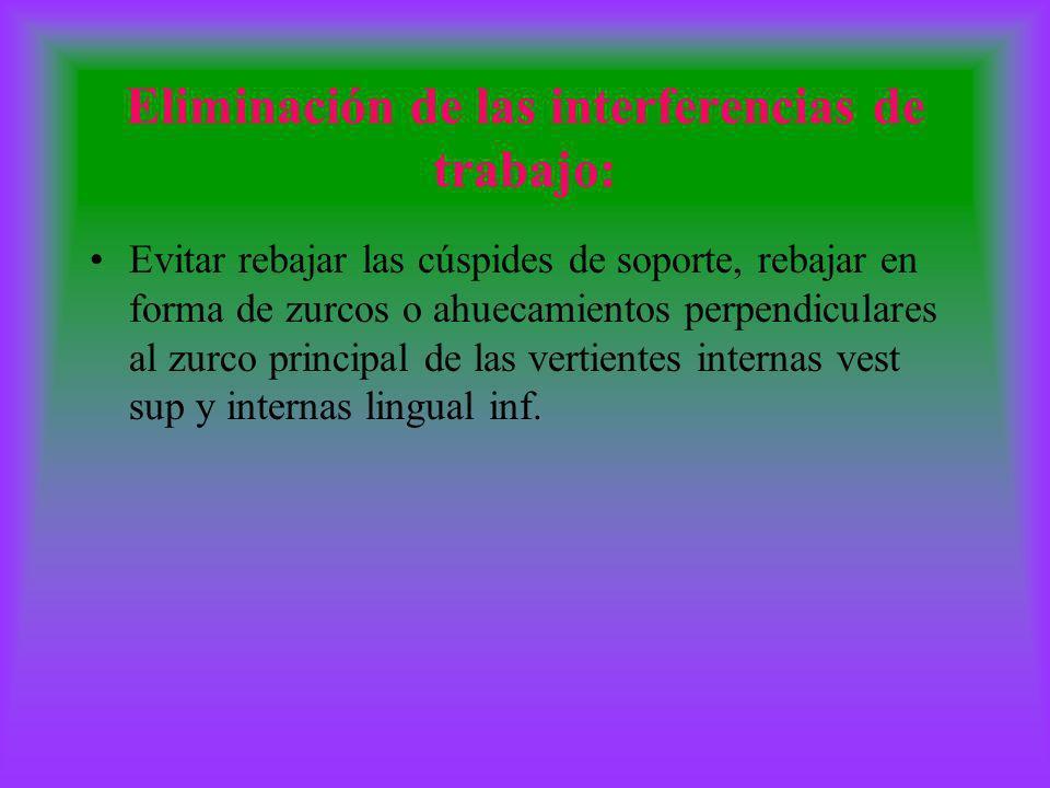 Eliminación de las interferencias de trabajo: