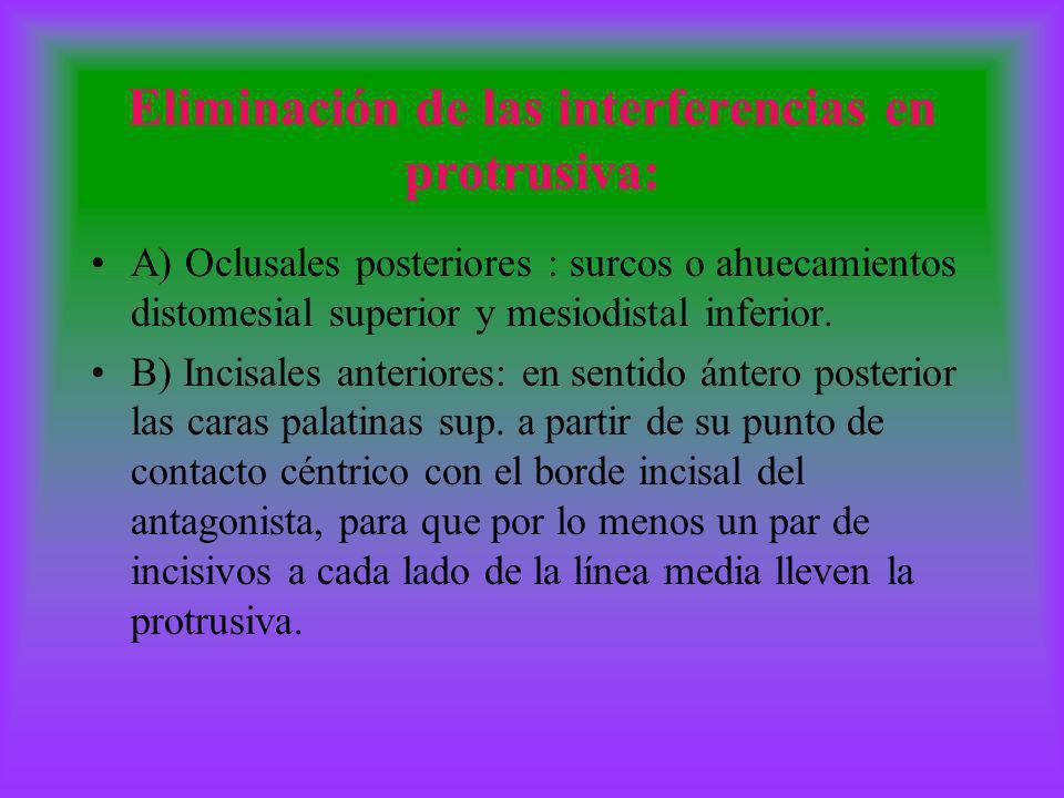 Eliminación de las interferencias en protrusiva: