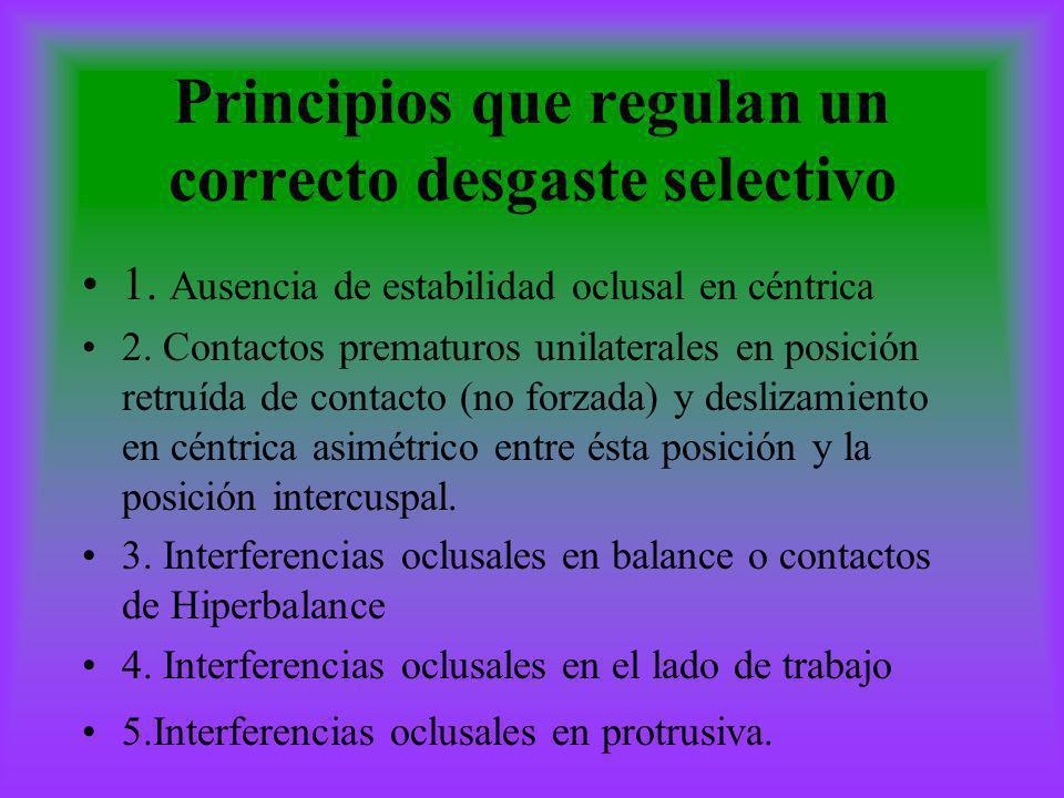 Principios que regulan un correcto desgaste selectivo