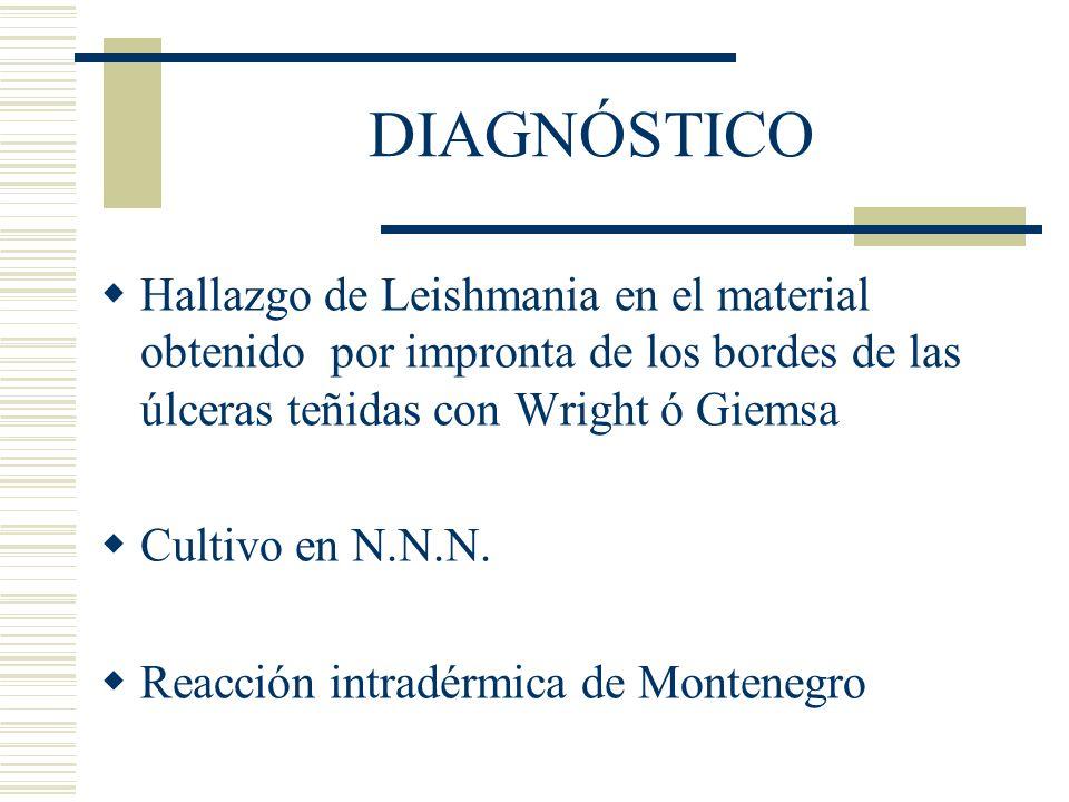 DIAGNÓSTICO Hallazgo de Leishmania en el material obtenido por impronta de los bordes de las úlceras teñidas con Wright ó Giemsa.