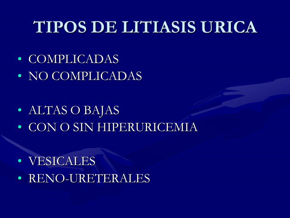 TIPOS DE LITIASIS URICA