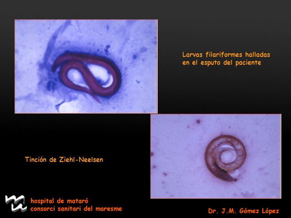Larvas filariformes halladas