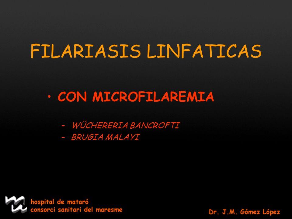 FILARIASIS LINFATICAS