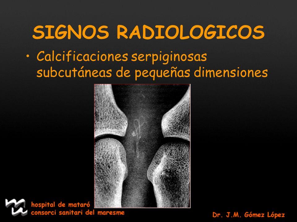 SIGNOS RADIOLOGICOS Calcificaciones serpiginosas subcutáneas de pequeñas dimensiones