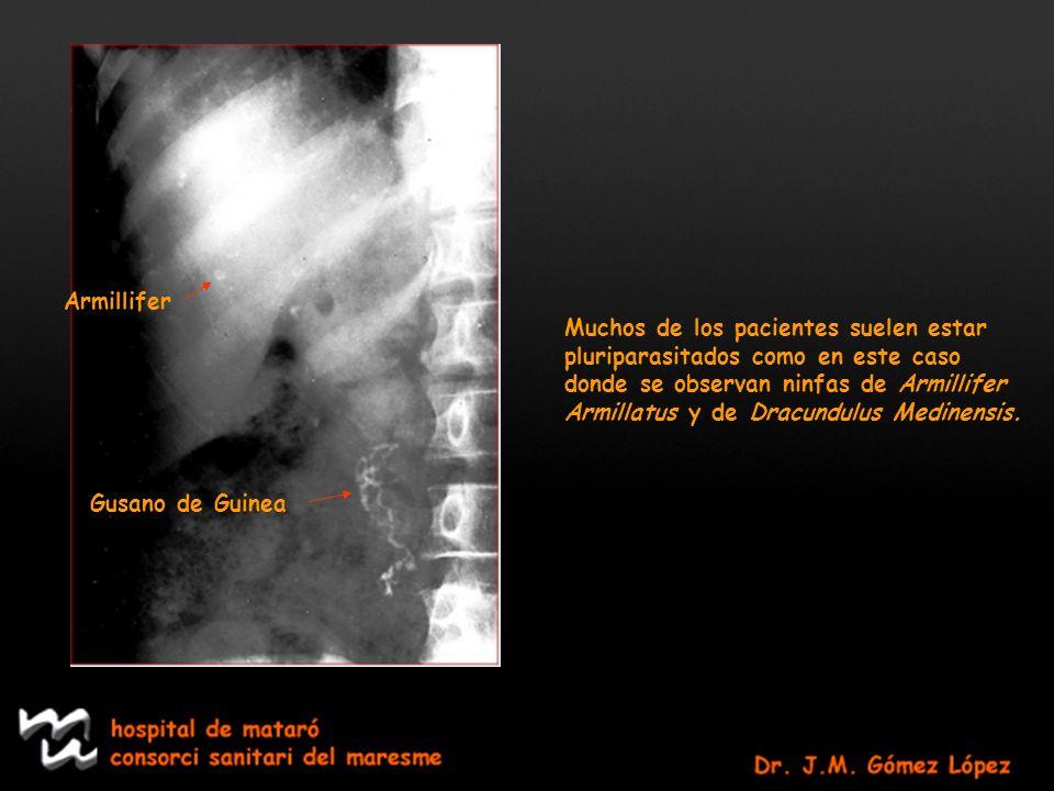 Armillifer Muchos de los pacientes suelen estar. pluriparasitados como en este caso. donde se observan ninfas de Armillifer.