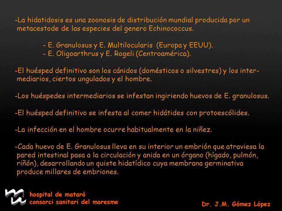 -La hidatidosis es una zoonosis de distribución mundial producida por un