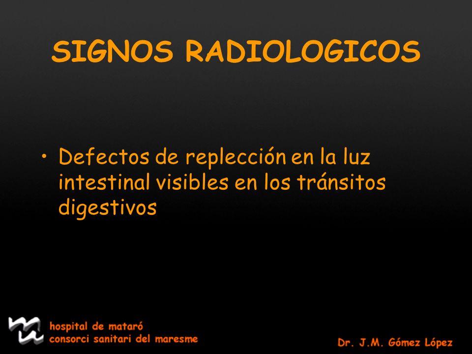 SIGNOS RADIOLOGICOS Defectos de replección en la luz intestinal visibles en los tránsitos digestivos.