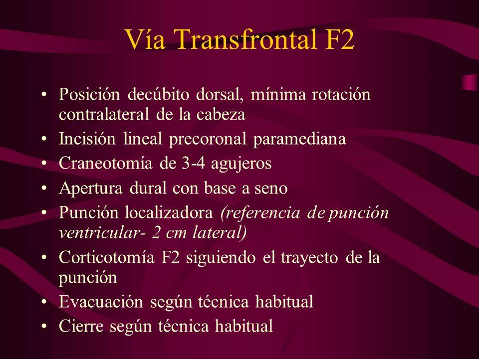 Vía Transfrontal F2 Posición decúbito dorsal, mínima rotación contralateral de la cabeza. Incisión lineal precoronal paramediana.