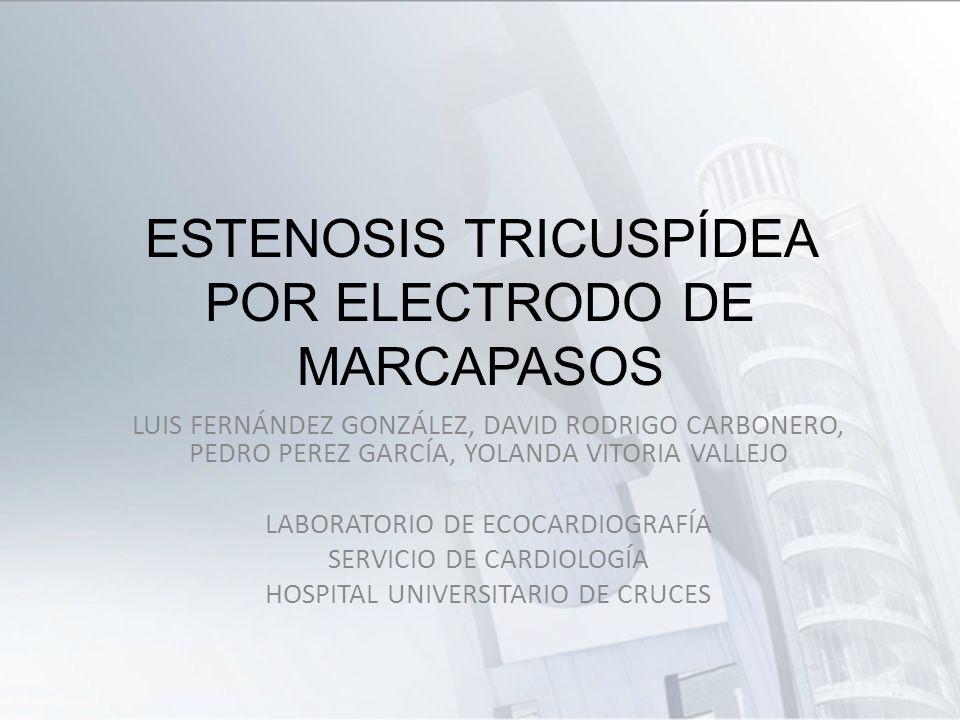 ESTENOSIS TRICUSPÍDEA POR ELECTRODO DE MARCAPASOS