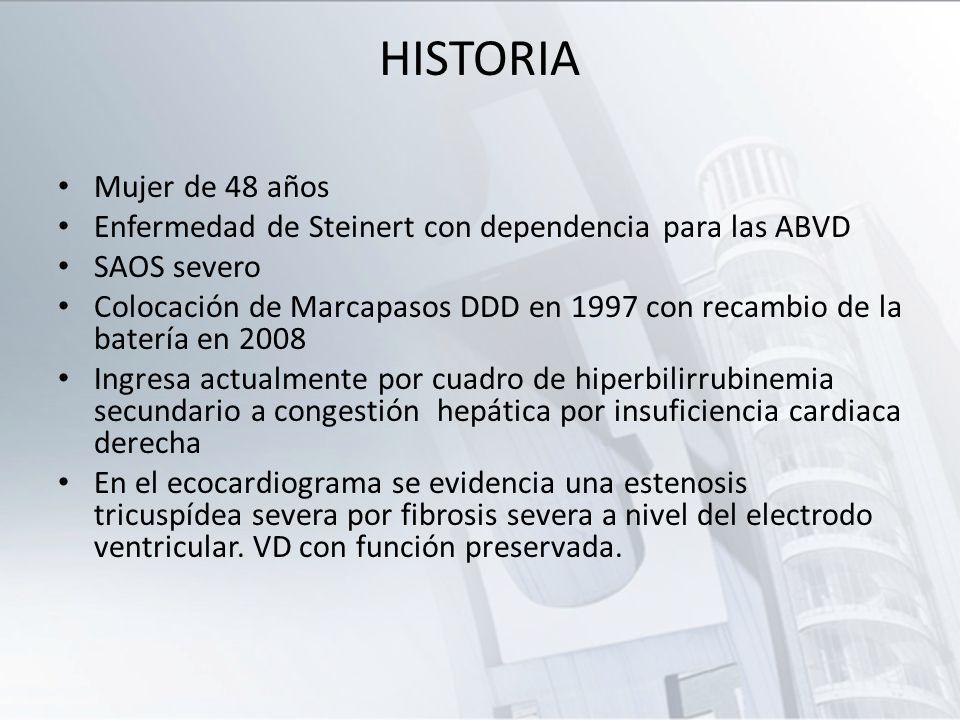 HISTORIA Mujer de 48 años. Enfermedad de Steinert con dependencia para las ABVD. SAOS severo.