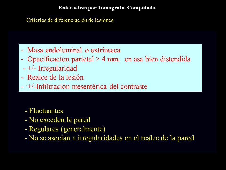 - Masa endoluminal o extrínseca
