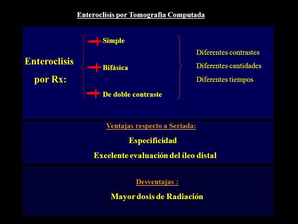 Enteroclisis por Rx: Excelente evaluación del íleo distal