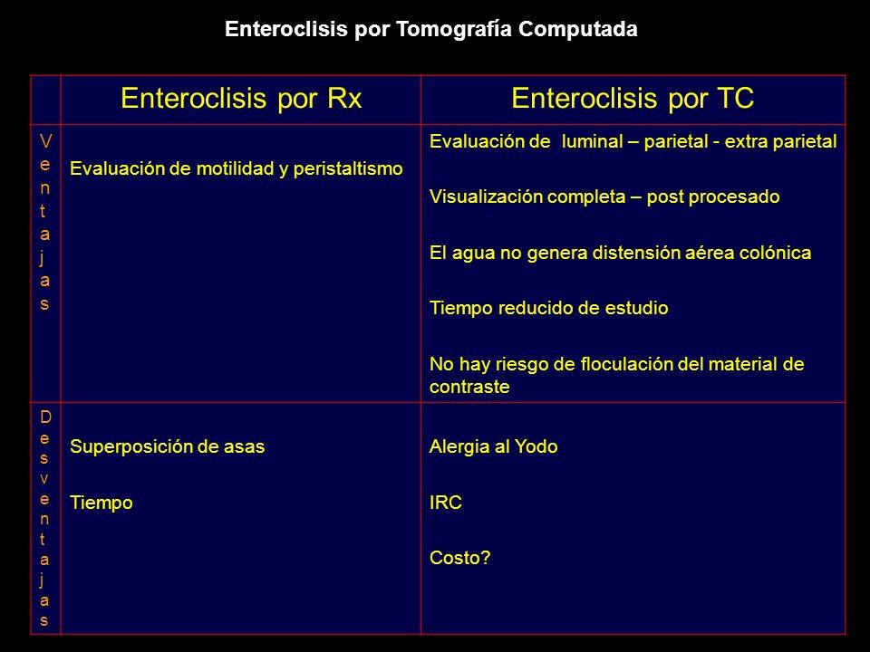 Enteroclisis por Rx Enteroclisis por TC