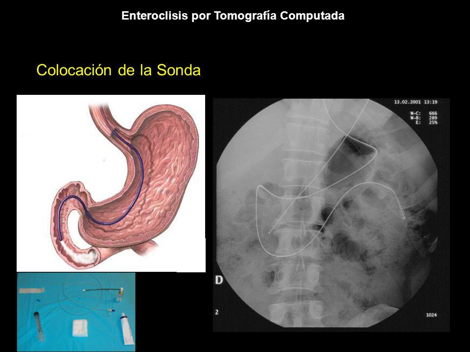 Enteroclisis por Tomografía Computada