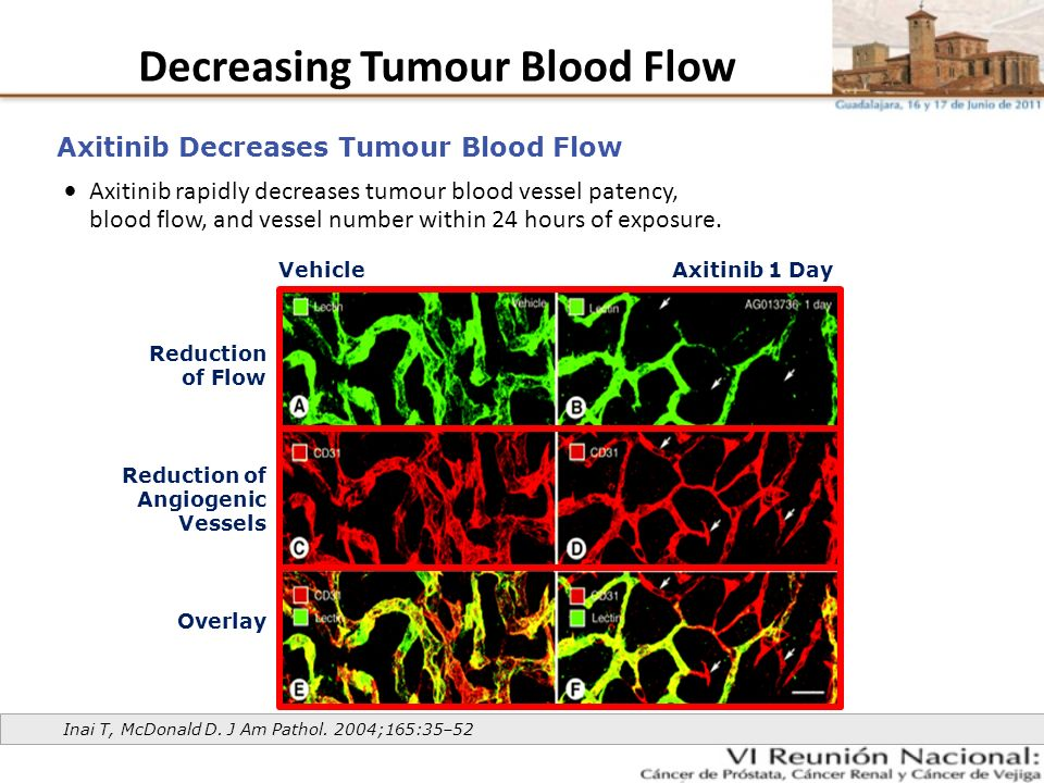 Decreasing Tumour Blood Flow
