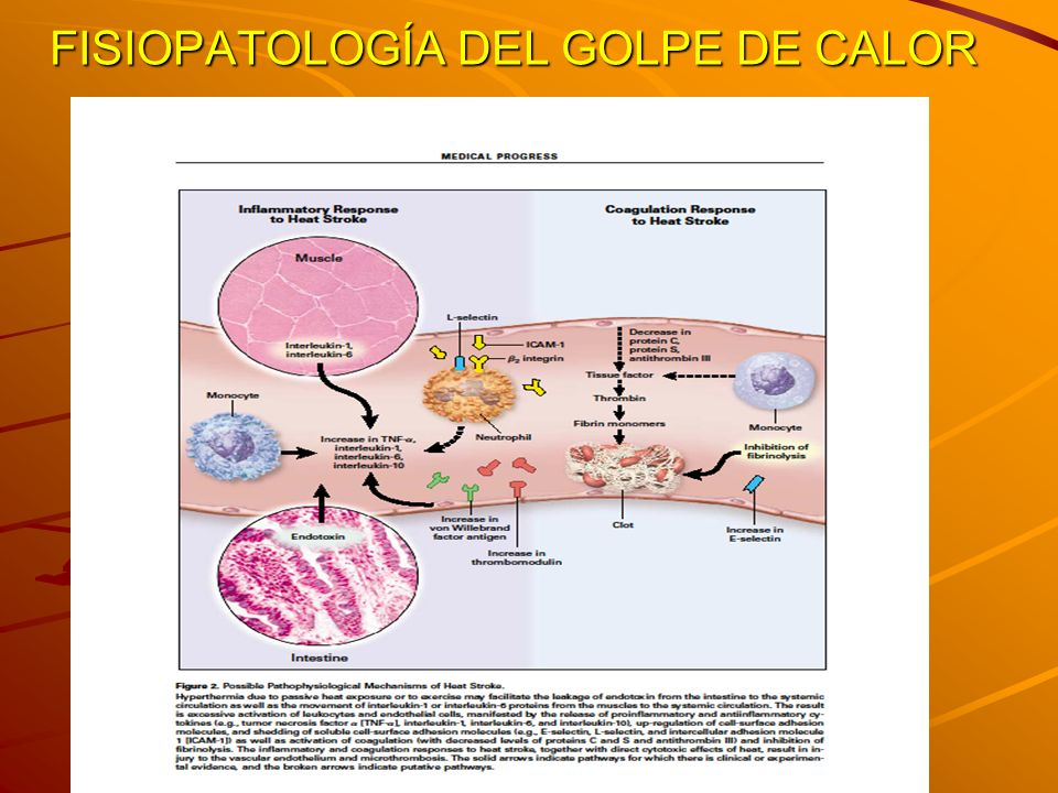 FISIOPATOLOGÍA DEL GOLPE DE CALOR