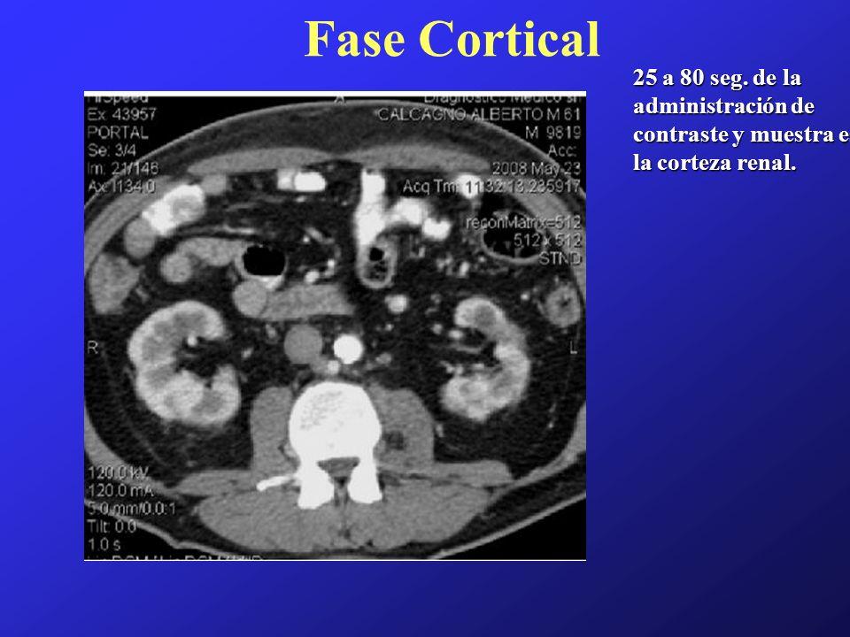 Fase Cortical 25 a 80 seg. de la administración de contraste y muestra es la corteza renal.