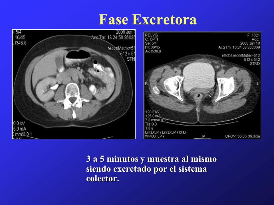 Fase Excretora 3 a 5 minutos y muestra al mismo siendo excretado por el sistema colector.