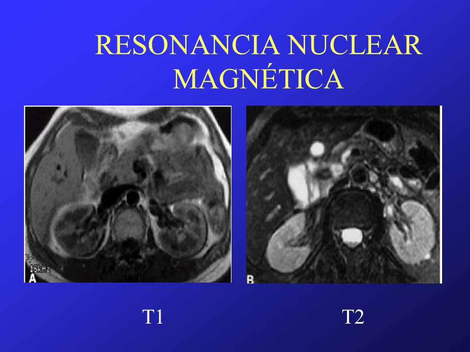 RESONANCIA NUCLEAR MAGNÉTICA