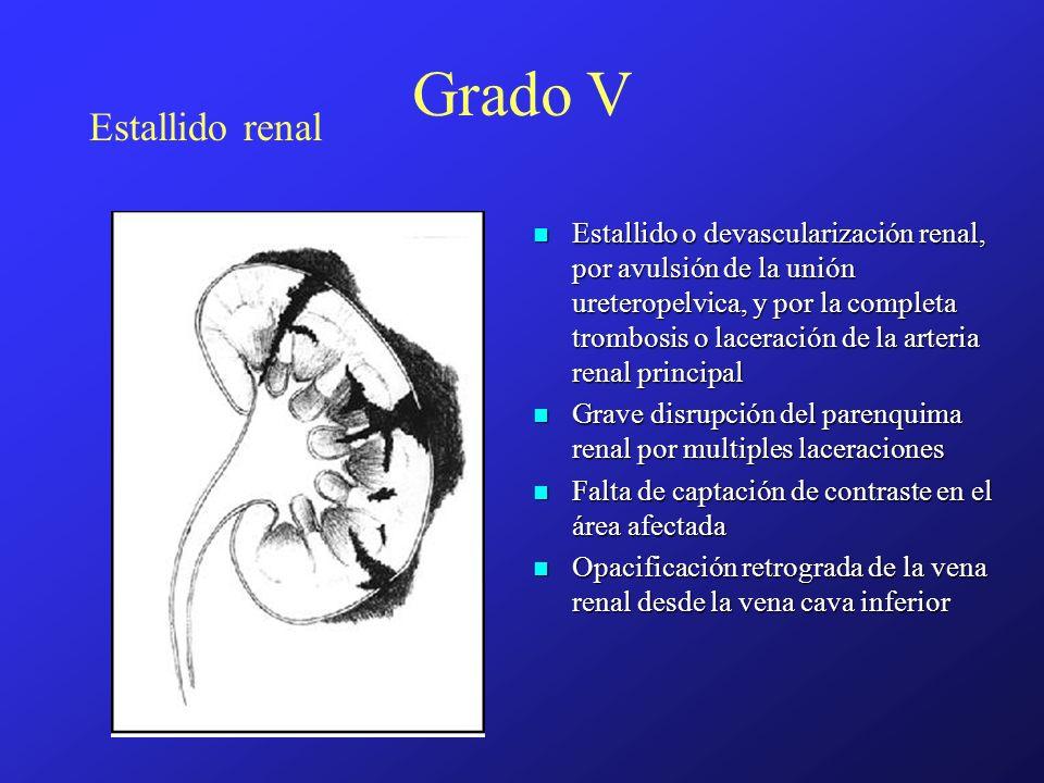 Grado V Estallido renal
