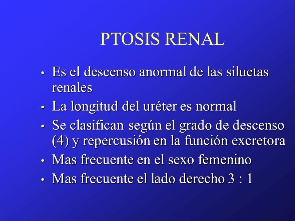 PTOSIS RENAL Es el descenso anormal de las siluetas renales
