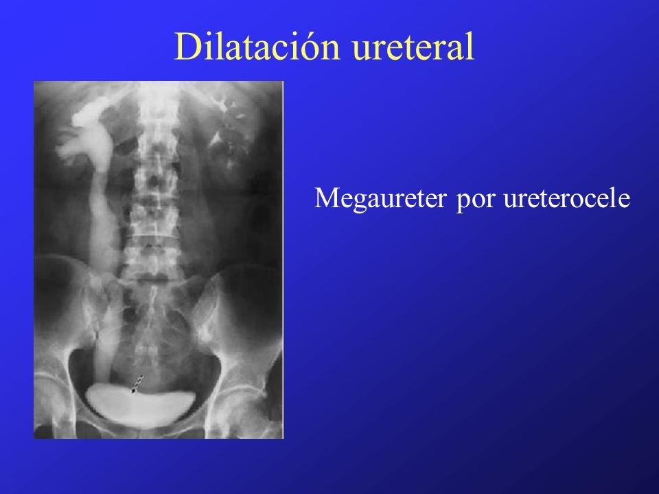 Dilatación ureteral Megaureter por ureterocele