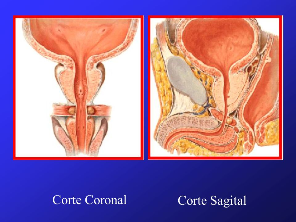 Corte Coronal Corte Sagital