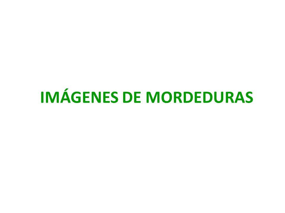 IMÁGENES DE MORDEDURAS