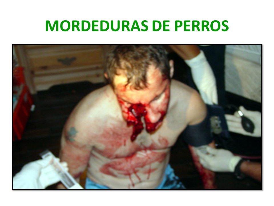 MORDEDURAS DE PERROS
