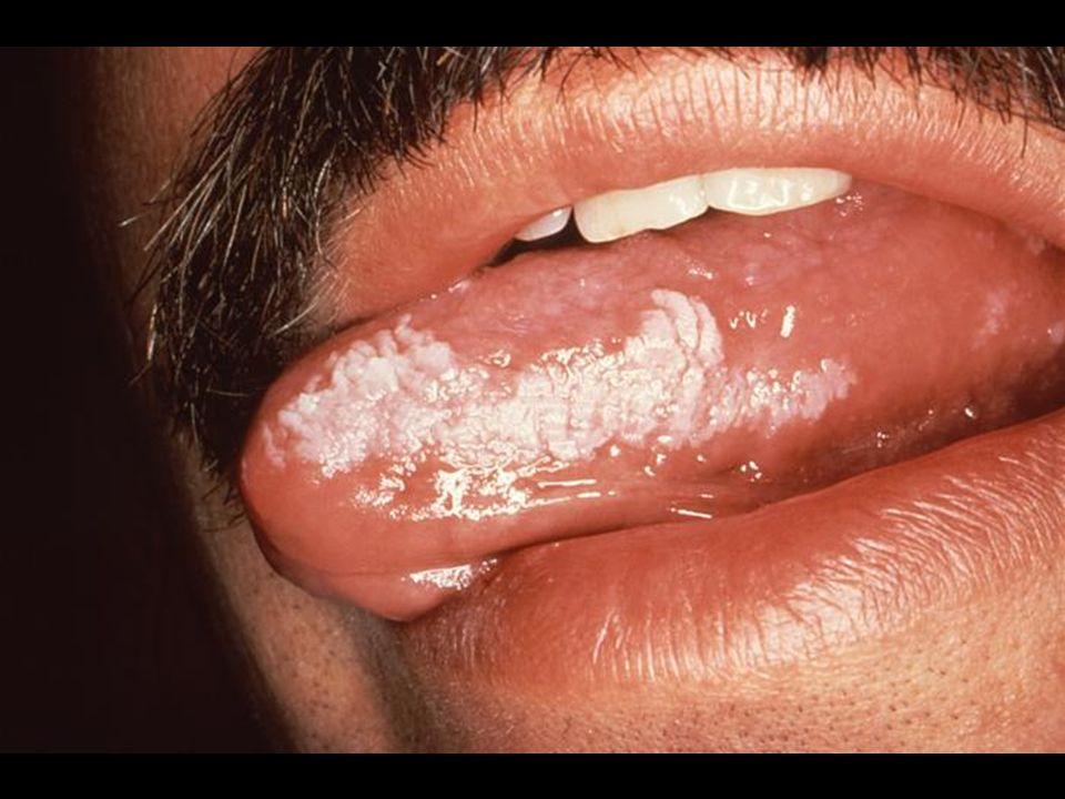 Leucoplasia oral vellosa por VEB en VIH