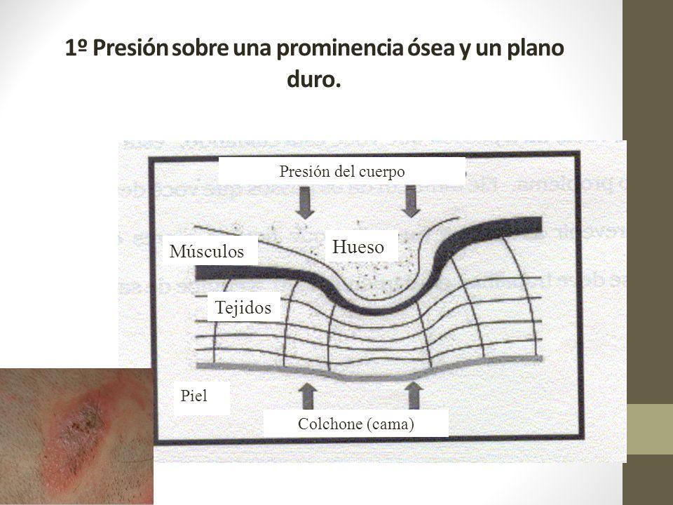 1º Presión sobre una prominencia ósea y un plano duro.