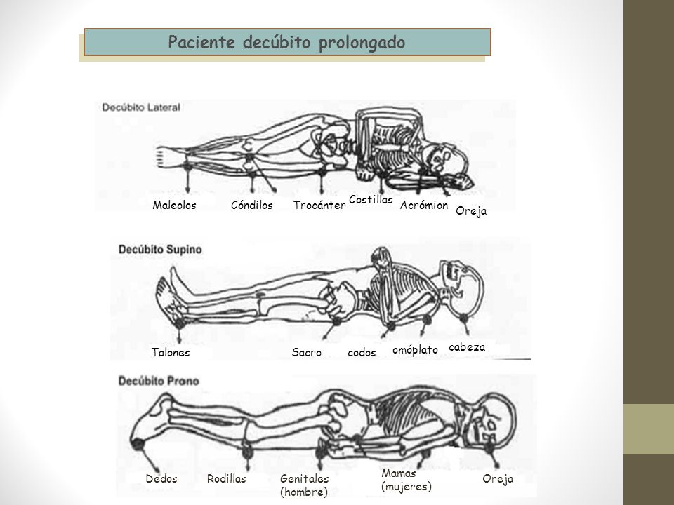 Paciente decúbito prolongado