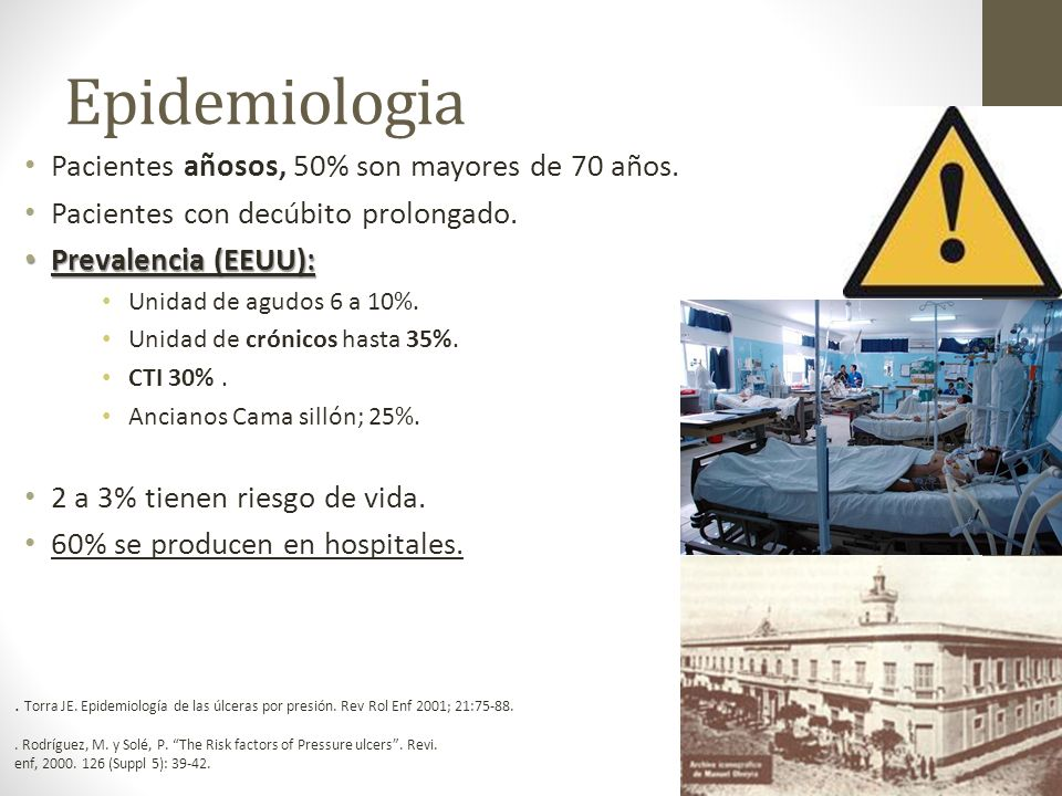 Epidemiologia Pacientes añosos, 50% son mayores de 70 años.