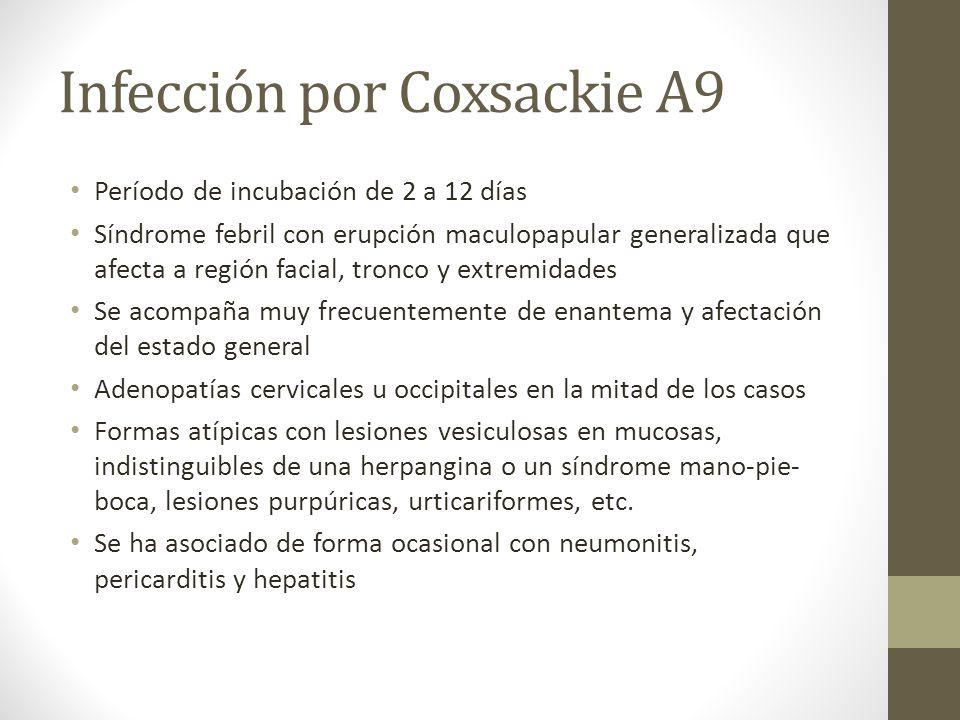 Infección por Coxsackie A9