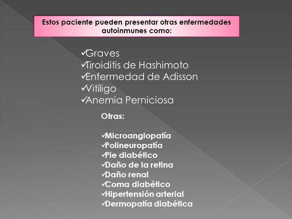 Estos paciente pueden presentar otras enfermedades autoinmunes como: