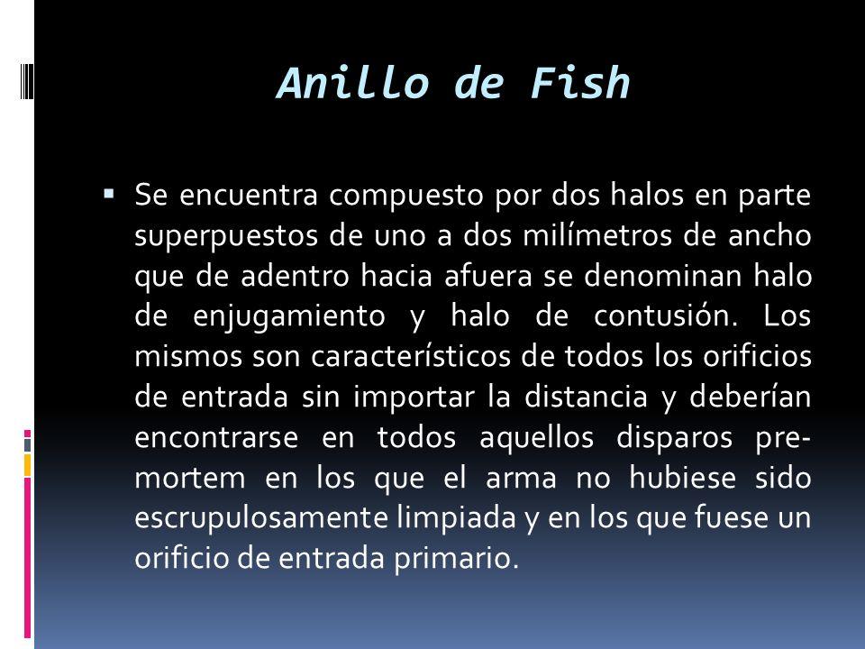 Anillo de Fish